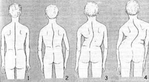 Врожденный сколиоз: классификация и причины развития заболевания, диагностика и характерные симптомы с учетом степени патологии, методы лечения и профилактики
