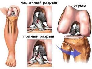Разрыв крестообразной связки колена: основные признаки и причины травмы, стандартные этапы реабилитации и лечения, сроки восстановления