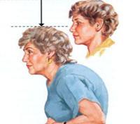 Остеомаляция: причины, симптомы, методы диагностики на разных стадиях, хирургическое и консервативное лечение, профилактика и рекомендации врачей