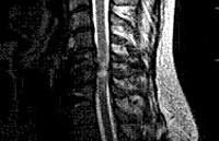 Миелопатия шейного отдела позвоночника: признаки и клиническая картина болезни, классификация и диагностика патологии, способы терапии и прогноз