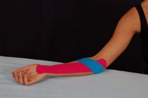 Кинезиотейпирование при эпикондилите локтевого сустава: когда необходимо провести процедуру, подготовка и показания, преимущества, лечебный эффект