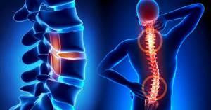 Идиопатический сколиоз: особенности и признаки болезни, виды отклонений и степени заболевания, как диагностируется и лечится патология