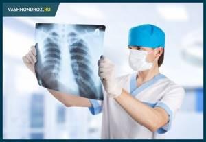 Как лечить грудной остеохондроз в домашних условиях: список препаратов и народных средств, полезные гимнастические упражнения и рекомендации по питанию и образу жизни