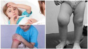 Артрит у детей: признаки и клиническая картина, разновидности болезни, лечебные мероприятия и профилактика патологии, прогноз жизни