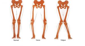 Варусная деформация стопы у детей: клиническая картина, причины и симптомы заболевания, лечебные мероприятия, способы профилактики и осложнения