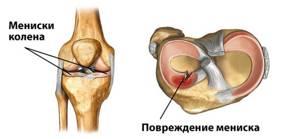 Операция при разрыве мениска коленного сустава
