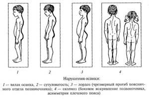Сколиотическая осанка: симптомы болезни и клиническая картина, способы устранения патологии и меры профилактики, комплекс упражнений