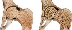 Остеопения и остеопороз — в чем разница заболеваний: почему кости слабеют, как восстановить, витамины, упражнения, рекомендации врачей,
