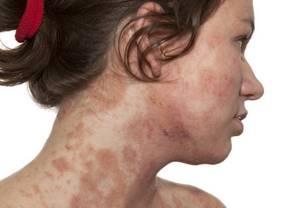 Бадяга порошок: состав и лечебные свойства препарата, показания и способы применения в косметологии и медицине, противопоказания и побочные реакции, отзывы потребителей