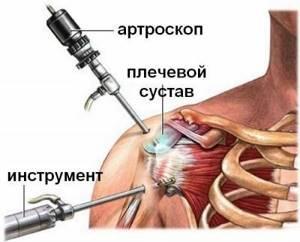 Импинджмент-синдром плечевого сустава: причины развития и симтомы патологии, особенности диагностики, консервативные и хирургические методы лечения, режим в период реабилитации