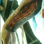 Некротический фасциит: описание и клиническая картина заболевания, причины и признаки болезни, фото и способы лечения