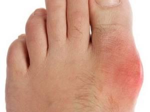 Компрессы для лечения артрита: причины и симптомы заболевания, обзор рецептов народной медицины, правила проведения процедур в домашних условиях
