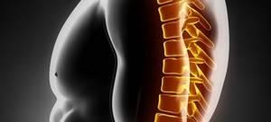 Миелопатия грудного отдела позвоночника: виды и причины развития патологии, методы диагностики и клинические симптомы, лечение и профилактика заболевания