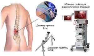 Дорзальная грыжа межпозвонкового диска: причины и симптомы заболевания, возможные осложнения, методы диагностики, особенности лечения, реабилитация и профилактика