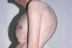 Лечение болезнь Бехтерева народными средствами в домашних условиях: простые и эффективные рецепты мазей, настоев и компрессов, правила проведения терапии и противопоказания, особенности диеты