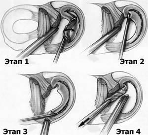 Последствия удаления мениска коленного сустава: показания коперации и виды вмешательства, особенности реабилитации и сроки восстановления, осложнения