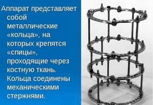Аппарат Илизарова: технические параметры, особенности эксплуатации, когда назначается, показания к применению и эффективность его использования