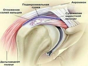 Полиартрит плечевого сустава: основные виды заболевания, что делать в домашних условиях и какие способы лечения лучше, признаки и причины болезни