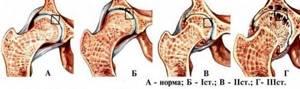Артроз тазобедренного сустава: принципы лечения патологии, эффективные лекарственные препараты и рецепты народной медицины, рекомендации по питанию и образу жизни