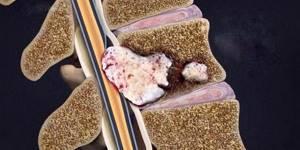 Массаж при остеохондрозе шейного отдела позвоночника: показания и противопоказания, рекомендации по технике выполнения и количеству сеансов, совмещение с другими лечебными методиками