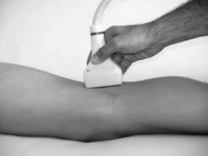 УЗИ коленного сустава: преимущества и недостатки процедуры, показания и противопоказания к исследованию, подготовка и методика проведения, расшифровка результатов