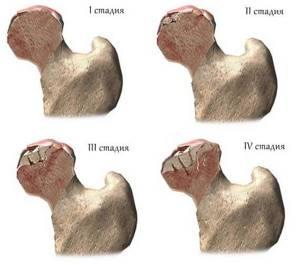 Боль в тазобедренном суставе, отдающая в ногу и ягодицу: факторы, провоцирующие неприятные ощущения, диагностические мероприятия, лечение и профилактика
