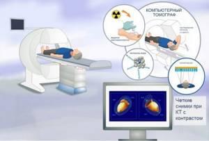 КТ грудного отдела позвоночника: преимущества методики, показания и противопоказания к назначению, подготовка и техника проведения обследования, стоимость диагностики