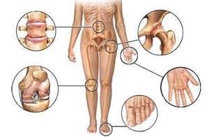 Полиостеоартроз: что это такое, как проявляется, диагностика, лечение артрозной болезни, профилактика и рекомендации врачей