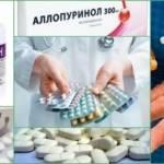 Применение оротовой кислоты для лечения подагры: особенности использования и эффективность, противопоказания и меры предосторожности, польза и вред препарата