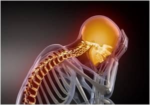 Цервикокраниалгия на фоне шейного остеохондроза: лечение и профилактика осложнения, виды и симптоматика заболевания, диагностические мероприятия