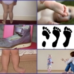 Вальгусная деформация стопы у детей: классификация и причины развития патологии, специфические симптомы и методы лечения, полезные рекомендации доктора Комаровского
