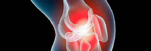 Народные средства при артрозе коленного сустава: рецепты нетрадиционной медицины, способы их применения и противопоказания к использованию