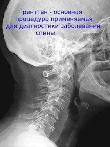 Хруст в шее при поворотах головы: причины и основные заболевания, что делать и как лечить в домашних условиях, методы народной медицины