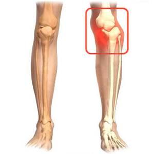 Вывих пальца на ноге: как вправить, первая помощь, чего нельзя делать, реабилитация и лечение мазями и кремами