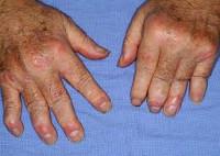 Псориатический артрит: классификация и клиническая картина, симптоматика и особенности заболевания, виды и способы лечения