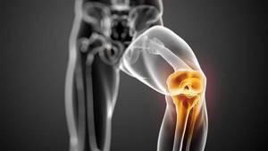 Лфк и упражнения при травме мениска коленного сустава: периоды реабилитации, комплекс тренировок и правила проведения лечебной физкультуры, рекомендации пациентам