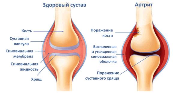 Артрит коленного сустава: причины и признаки развития воспаления, разновидности болезни и методы терапии, профилактические приемы, народные рецепты