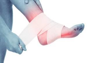 Лечение остеоартроза стопы: симптомы заболевания, диагностика, терапия консервативными, оперативными и народными методами, профилактика и отзывы пациентов