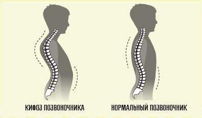 Остеоартроз позвоночника шейного, поясничного, грудного отдела: этиология, диагностика и лечение заболевания, симптомы и признаки болезни