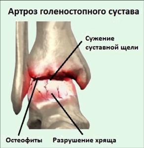Сужение суставной щели: как формируется патологическое состояние, симптомы и характер болезни, медикаментозные методы терапии и показания для операции