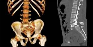 КТ пояснично-крестцового отдела позвоночника: показания и противопоказания к диагностике, подготовка и способы проведения обследования, допустимая периодичность