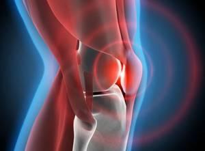 Воспаление мениска: причины и характерные симптомы, отличительные черты от других патологий, диагностические мероприятия, лечение и профилактика в домашних условиях