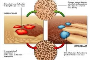 Остеокальцин: особенности проведения исследований, норма в крови, повышенный и пониженный уровень, причины отклонения у мужчин и женщин, лечение нарушения