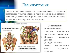 Ламинэктомия: в каких случаях назначается и как проводится операция, правила подготовки, последствия, возможные осложнения и реабилитация в домашних условиях