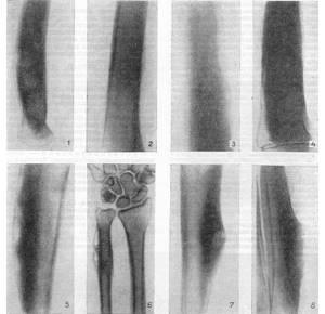 Воспаление надкостницы: причины развития периостита, виды и формы болезни, методы диагностики, правила оказания доврачебной помощи и лечение, возможные осложнения