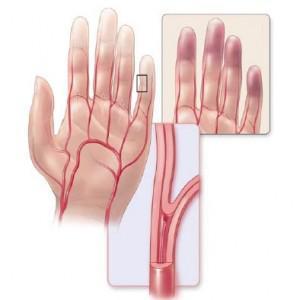 Немеют кончики пальцев рук и ног: физиологические и патологические причины состояния, способы диагностики и профилактика, современные и народные методы лечения