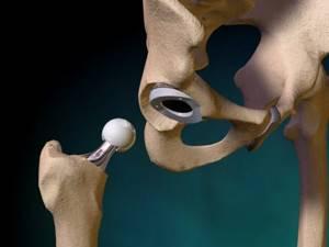 Эндопротезирование тазобедренного сустава: показания и техника выполнения процедуры, реабилитационный период и стоимость процедуры, противопоказания и отзывы пациентов