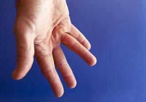 Контрактура Дюпюитрена: симптомы и стадии патологии, методы диагностики, консервативное, медикаментозное и физиотерапевтическое лечение без операции