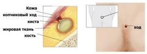 Воспаление копчика: степень и тяжесть, симптомы, первая помощь в домашних условиях и методы лечения