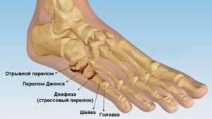 Болят ступни ног: возможные заболевания и методы диагностики болезни, способы избавления от боли и терапевтические мероприятия, профилактика и осложнения